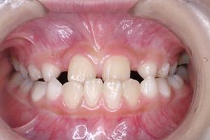 下顎前突症 3-1