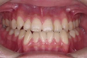 顎変形症-1