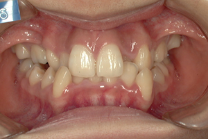 口蓋裂症-1
