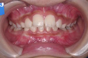 上顎前突症-1