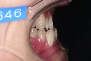 顎変形症-2