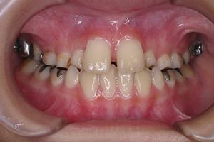 下顎前突症 2-3