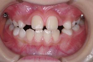 下顎前突症 3-3