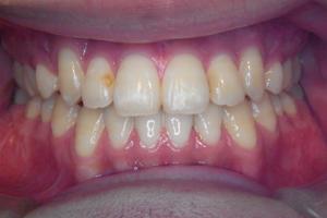 顎変形症-3
