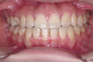 口蓋裂症-3