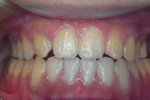 口蓋裂症 2-3