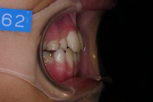 下顎前突症 2-4