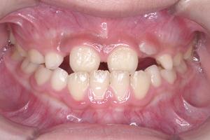 下顎前突症-1
