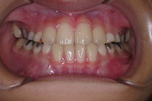 下顎前突症 2-5