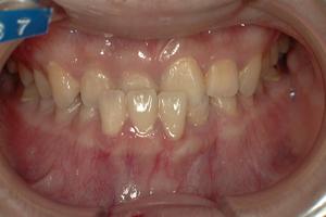 下顎前突症-5