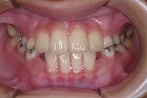 下顎前突症 2-7